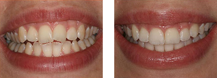 Six Month Smiles before & after