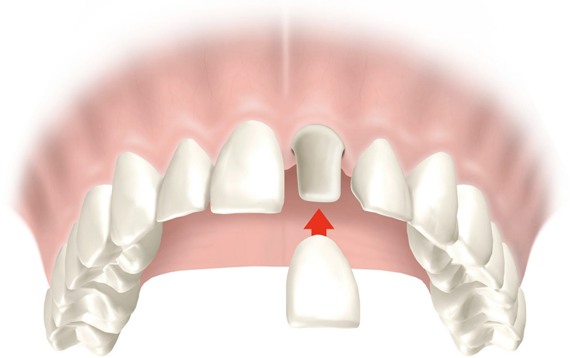 Dental crowns in Fulham & Hammersmith  Fulham