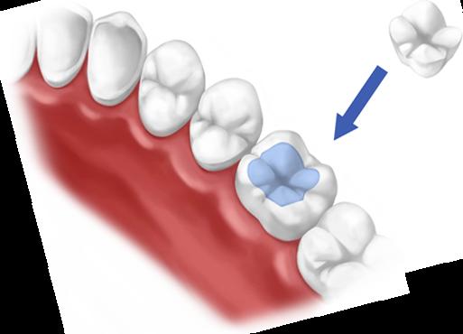 Dental inlays & onlays in Fulham & Hammersmith   K2 Dental ...
