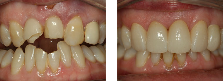 Trauma, dental crown and dental implant case before & after