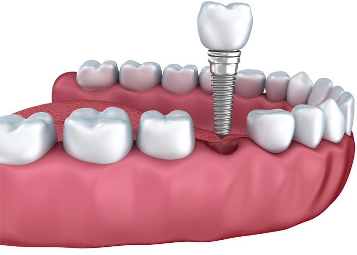 Dental implants in Fulham & Hammersmith