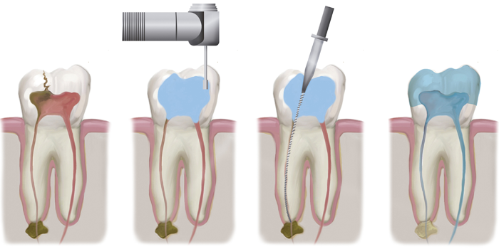 Root canal treatments in Fulham & Hammersmith